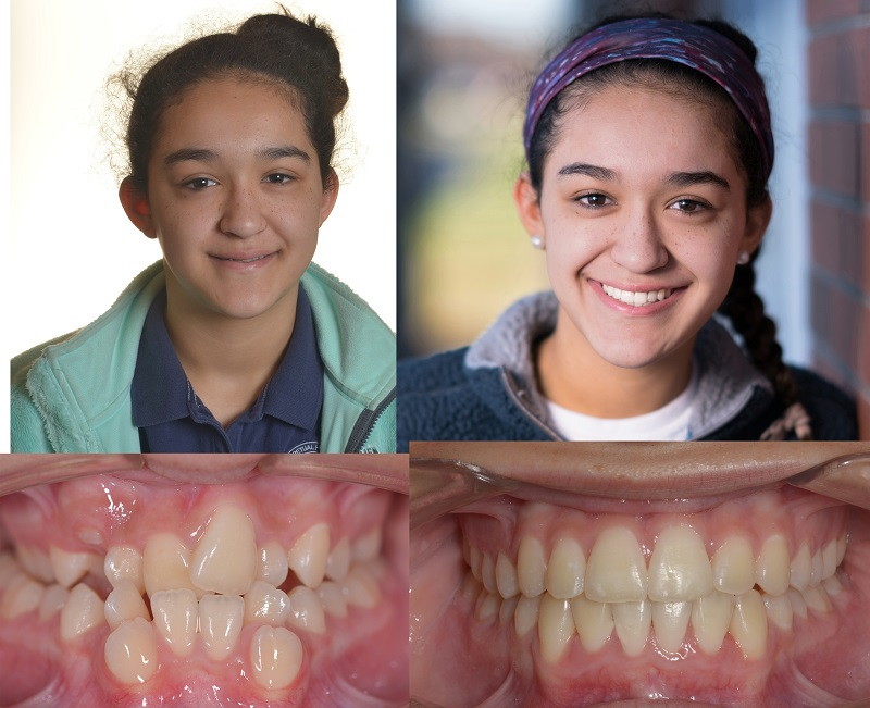 before and after picture of an orthodontic patient from Sawrie Orthodontics